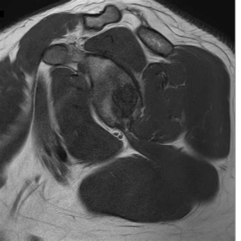 Glenoid Subchondral Cystic Lesion -Approach