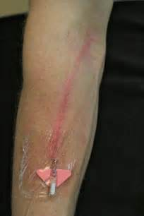 IV Site Assessment - Peripheral Intravenous Access