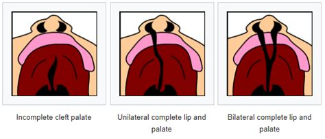 What you need to know about Cleft lip & palate