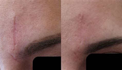 Secret RF Microneedling Before and After Pictures in